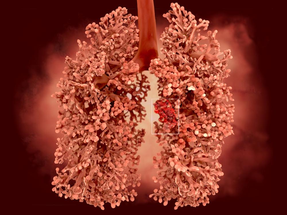 Asbest och dess hälsorisker